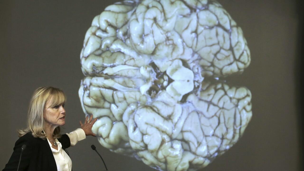 brain concussion AP
