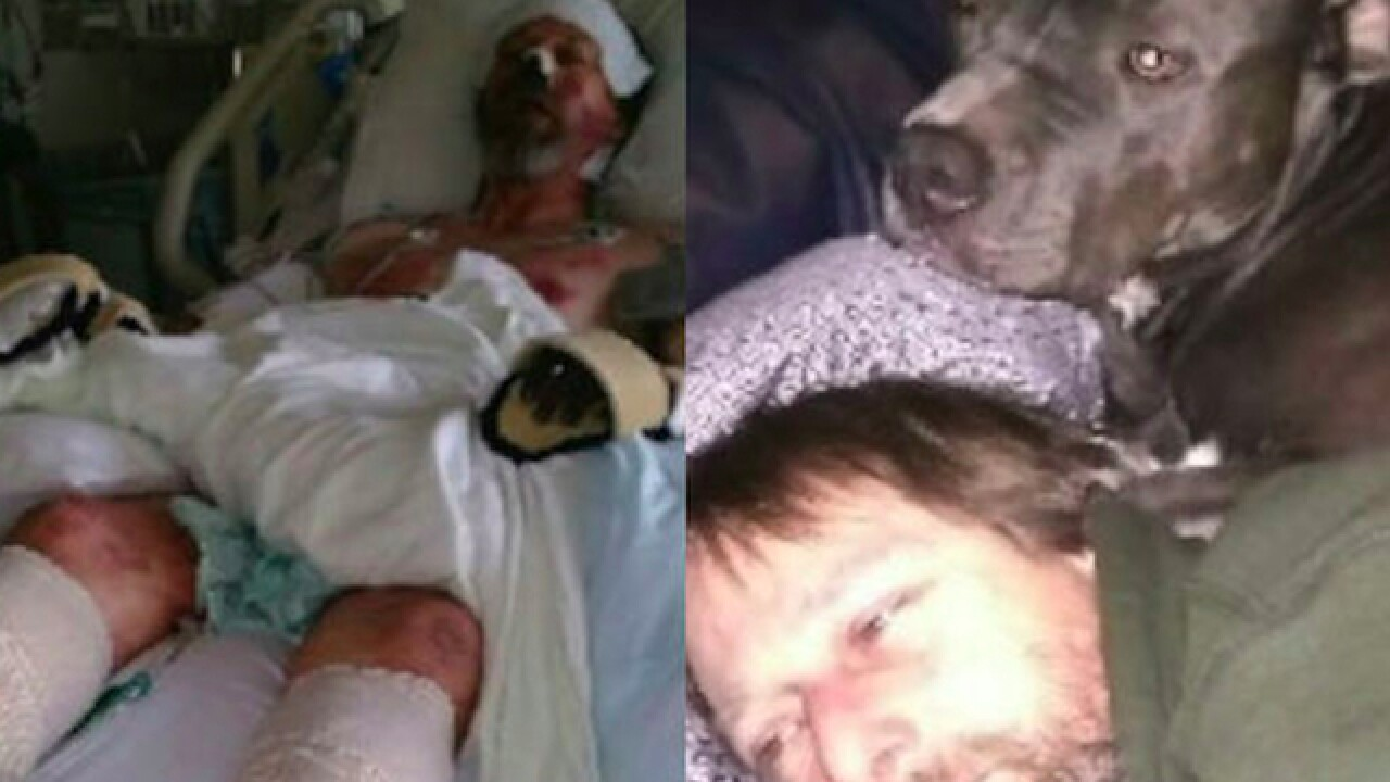 Dog licking Wisconsin man likely cause of bacterial infection that led to his legs being amputated