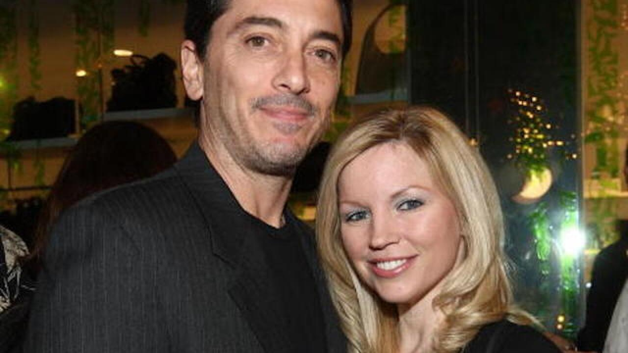 Renee Baio, wife of actor Scott Baio, reveals she has microvascular brain disease