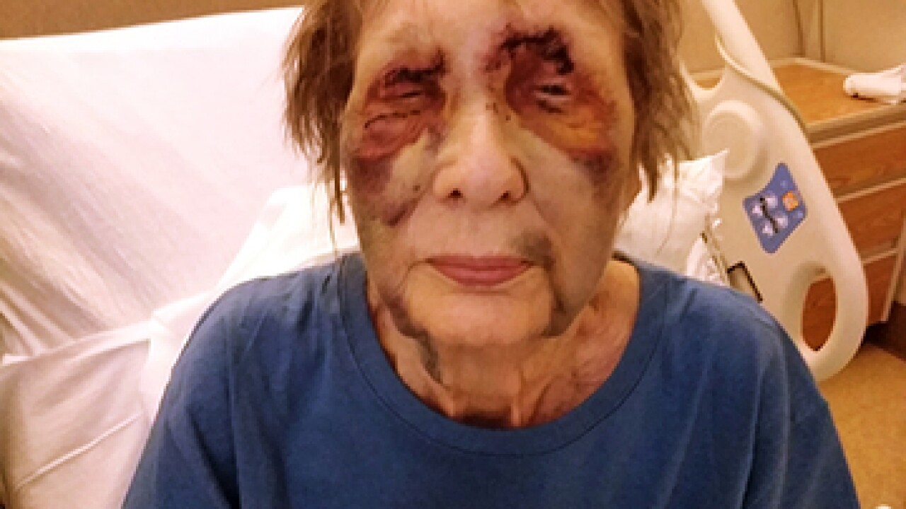 80-year-old woman played dead after she was shot