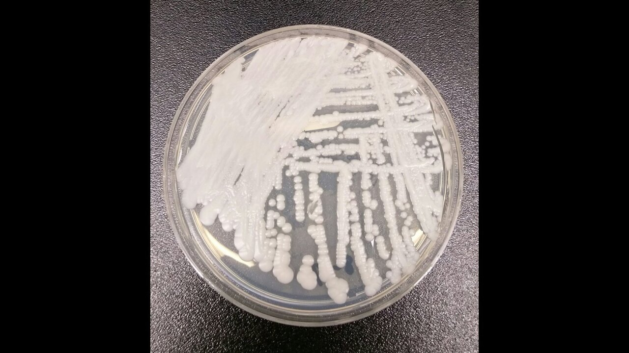 This drug-resistant fungus is spreading. Scientists warn of new superbugs to come