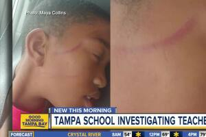 Tampa school investigating special needs teacher accused of physically abusing student