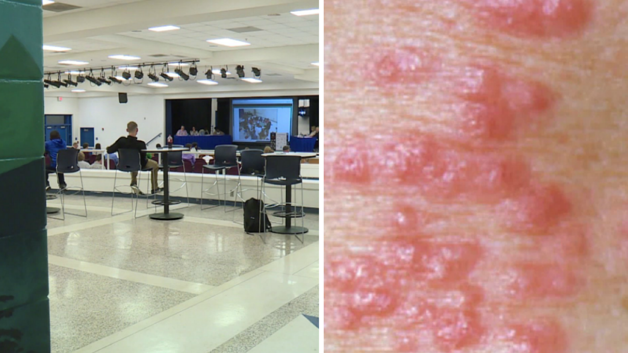 Several cases of scabies confirmed across Cumberland County schools