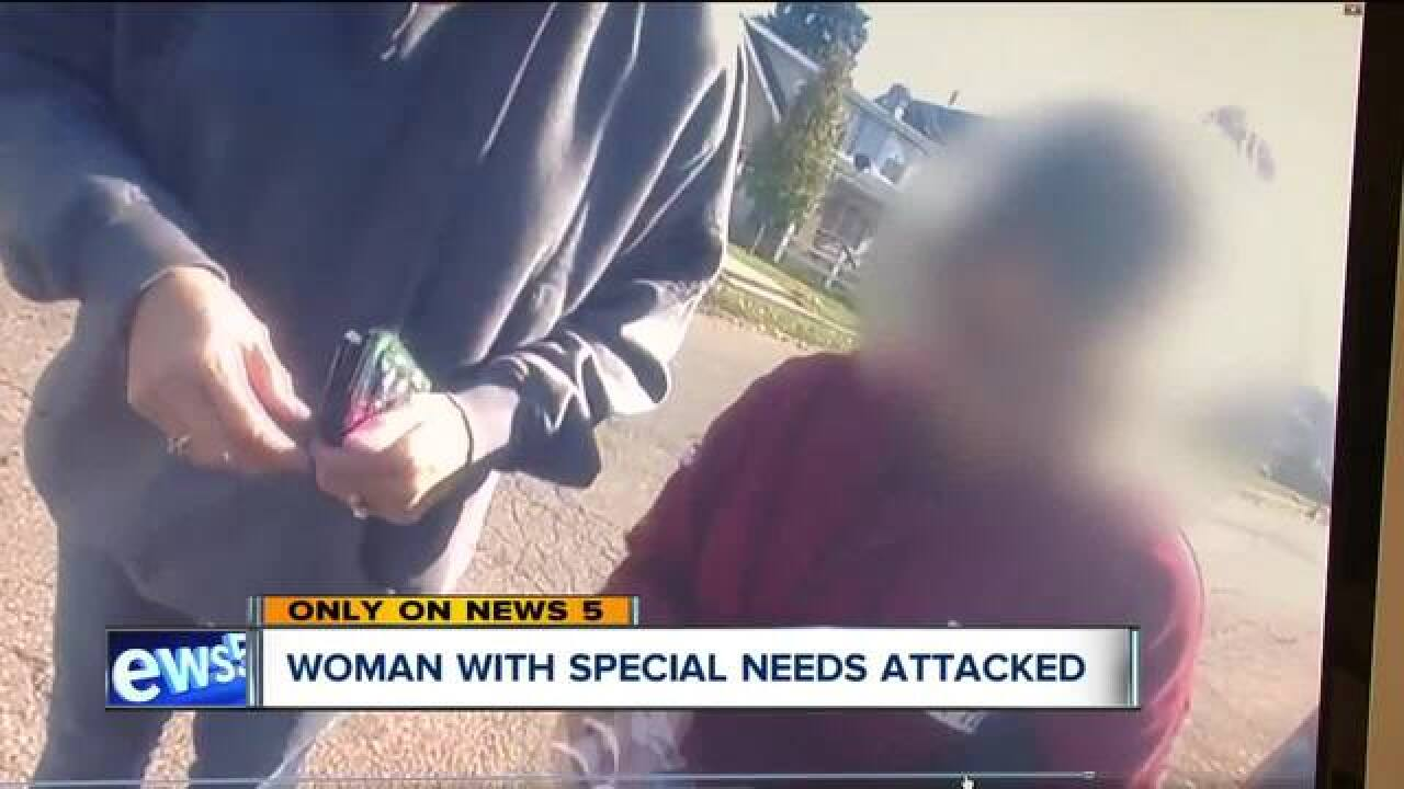 Woman with special needs robbed in Canton
