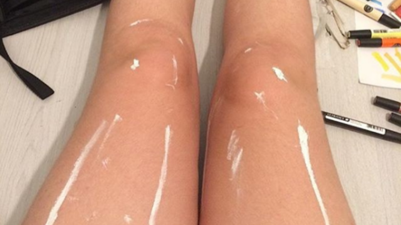 This photo of a pair of legs has the internet stumped