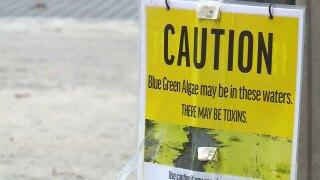 Blue-green algae sign at the Pahokee Marina on Sept. 13, 2021