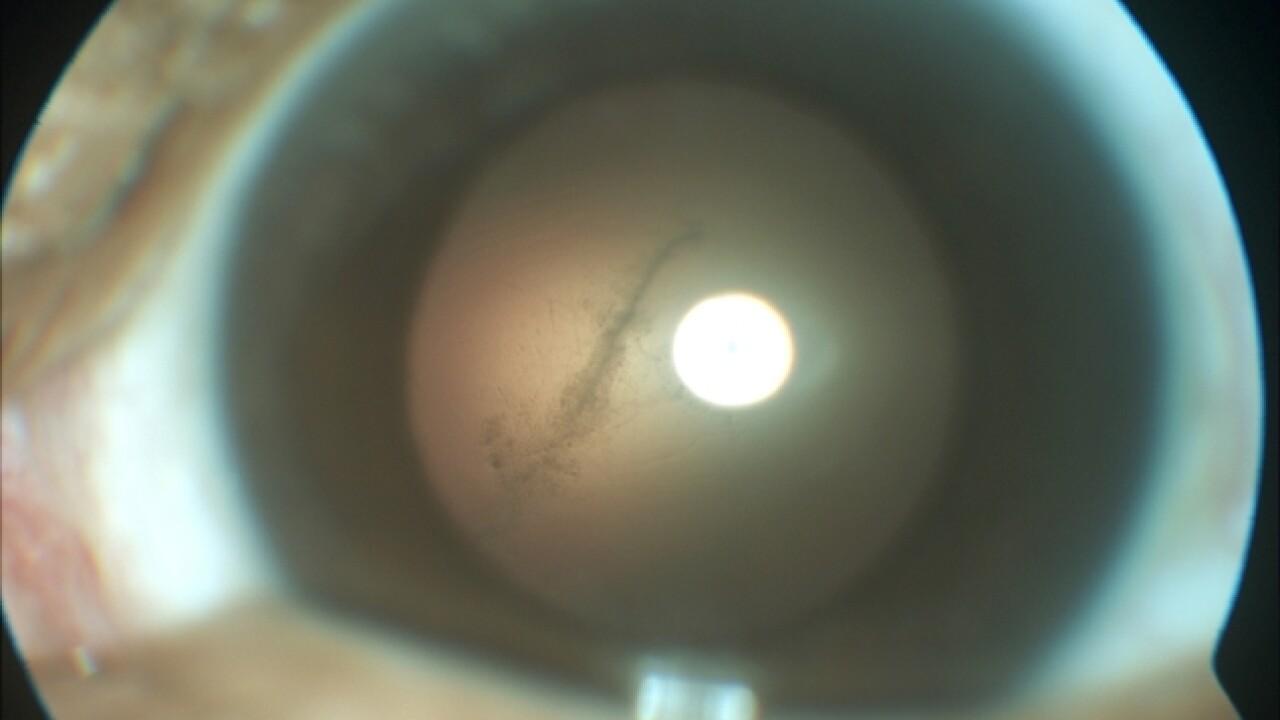Brain-eating worm grows in Florida man's eye