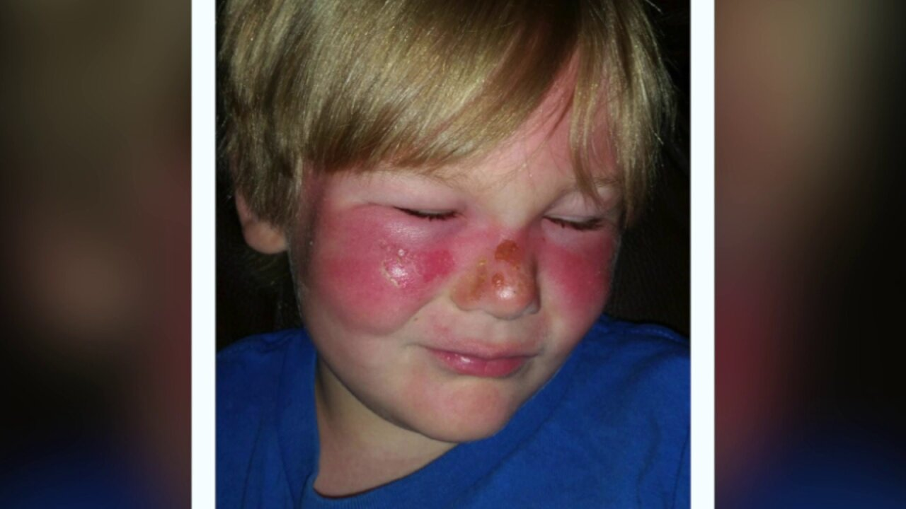 Child suffers second degree burns even after applying 50 SPF sunscreen multipletimes