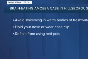 DOH confirms case of rare brain-eating amoeba in Hillsborough County