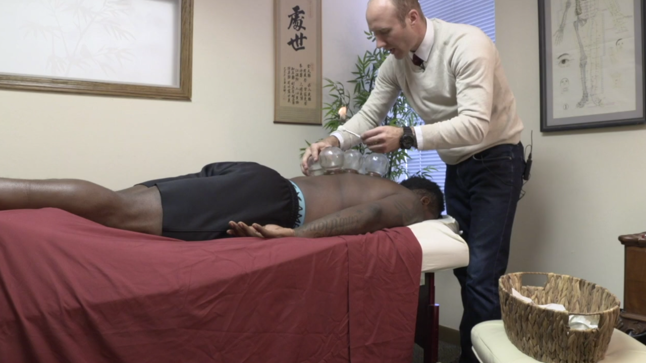 Former football player helping athletes overcome concussions with Chinese medicine