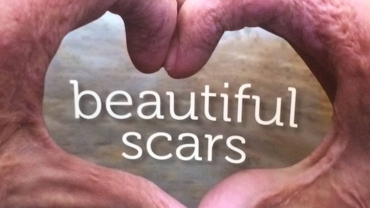 Kilee Brookbank finds strength in her scars