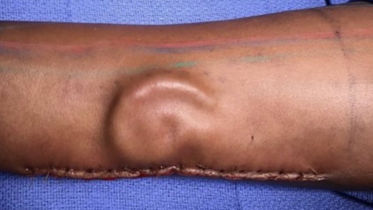 After soldier lost ear, doctors grew her a new one -- in her forearm
