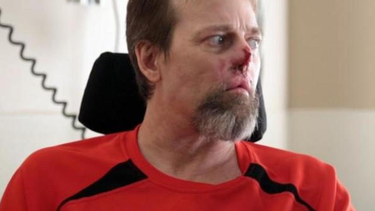 Man loses hands and feet after dog-related infection