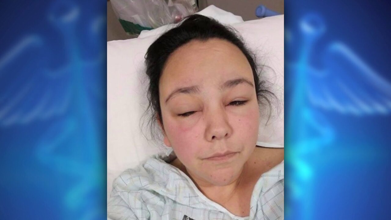 Magna woman suffers severe allergic reaction from hair dyeproduct