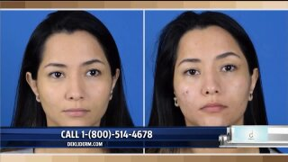 Dekliderm foundation changes to match your skintone