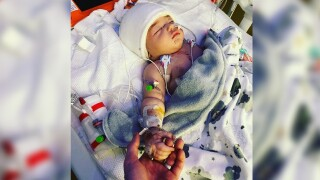 5-month-old sent to ICU after being attacked by dogs in his Maryland home