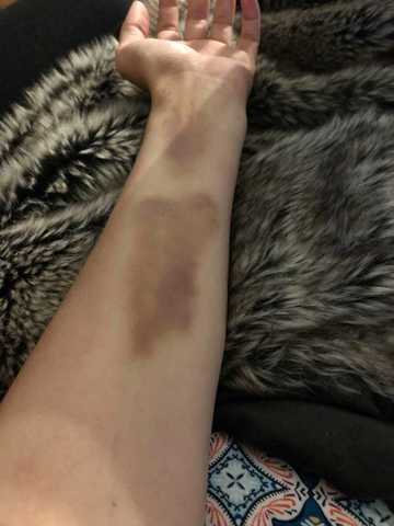 Illinois woman struck by lightning at Country Thunder Music Festival [PHOTOS]