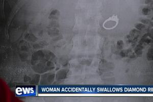 San Diego woman swallows engagement ring while sleeping