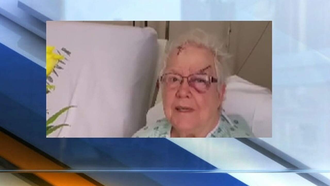 Elderly woman beaten, robbed in her own home