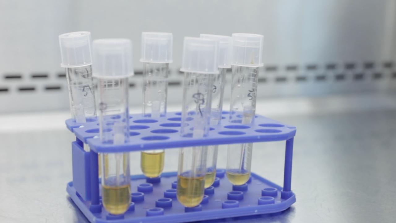 San Diego researchers race to get coronavirus vaccine to the world
