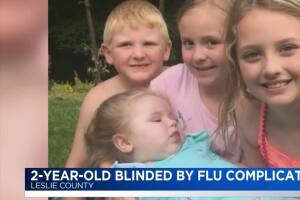 2-year-old blinded by flu complications