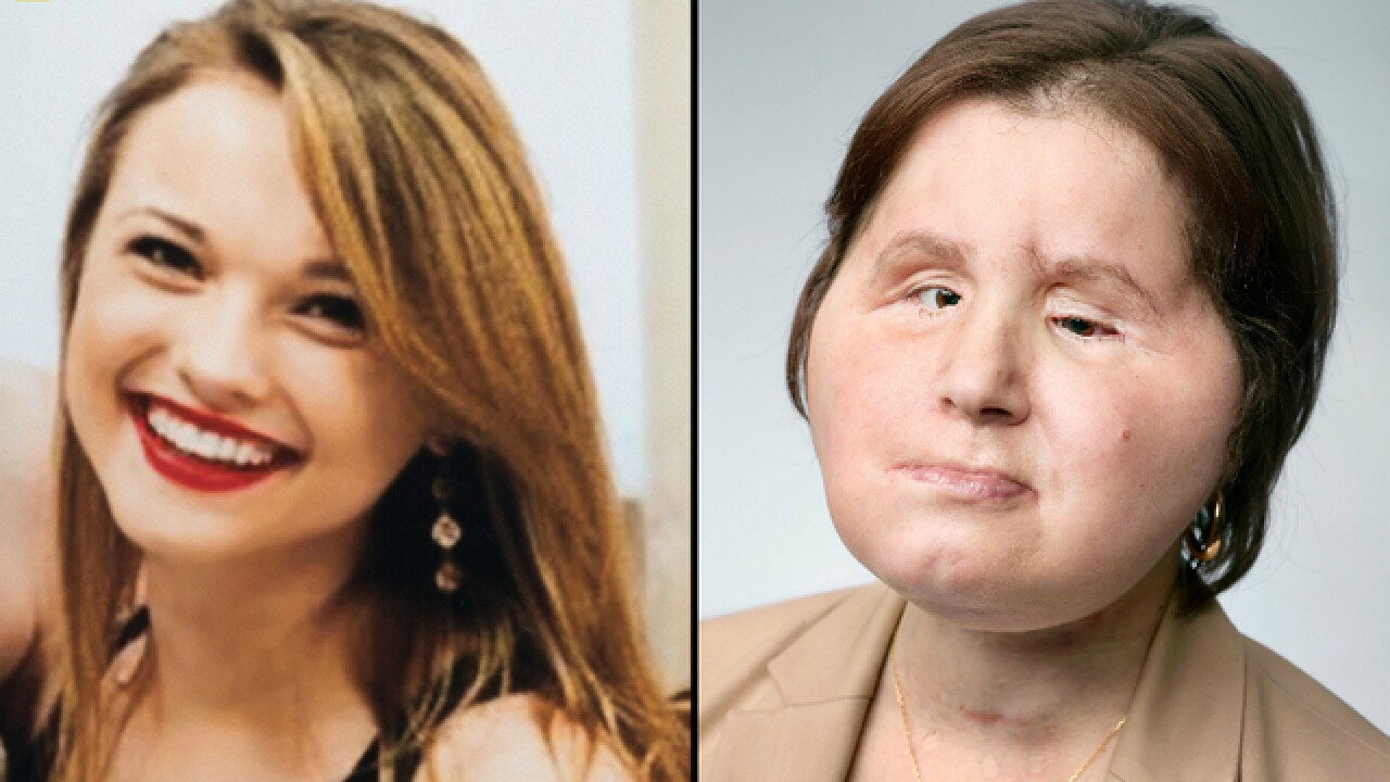 Historic face transplant gives suicide survivor a 'second chance'