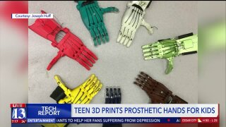 Orem teen 3D prints 25 prosthetic hands for kids and wins national award