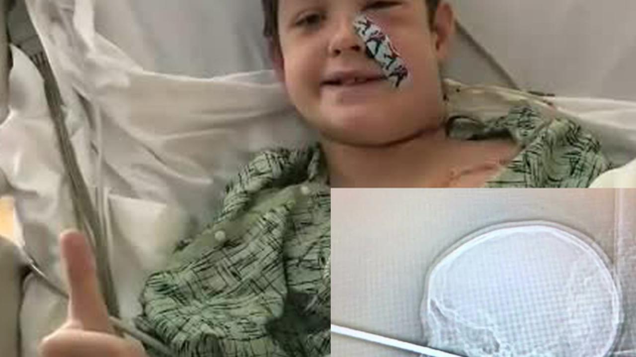 Boy survives after meat skewer pierces skull