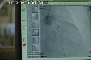 Hospitals seeing less heart-related patients during pandemic