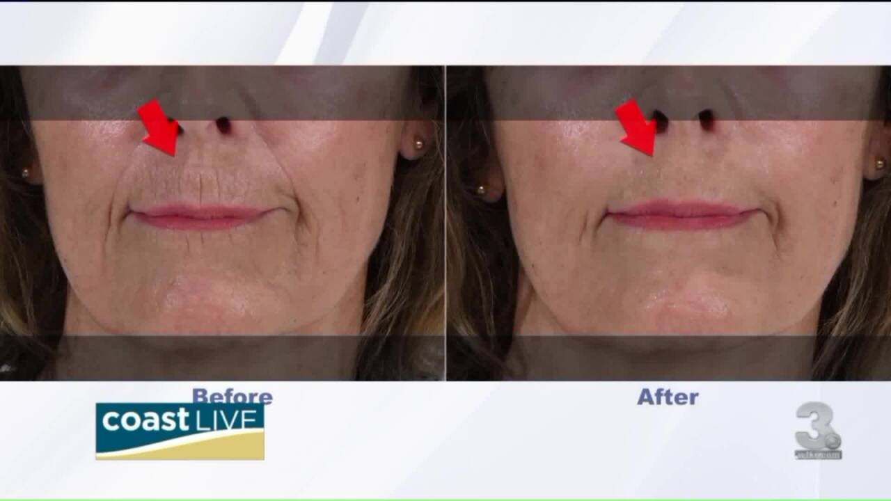 A cream that smooths out wrinkles with the blink of an eye on CoastLive