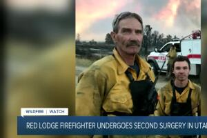 Injured Red Lodge firefighter undergoes second surgery
