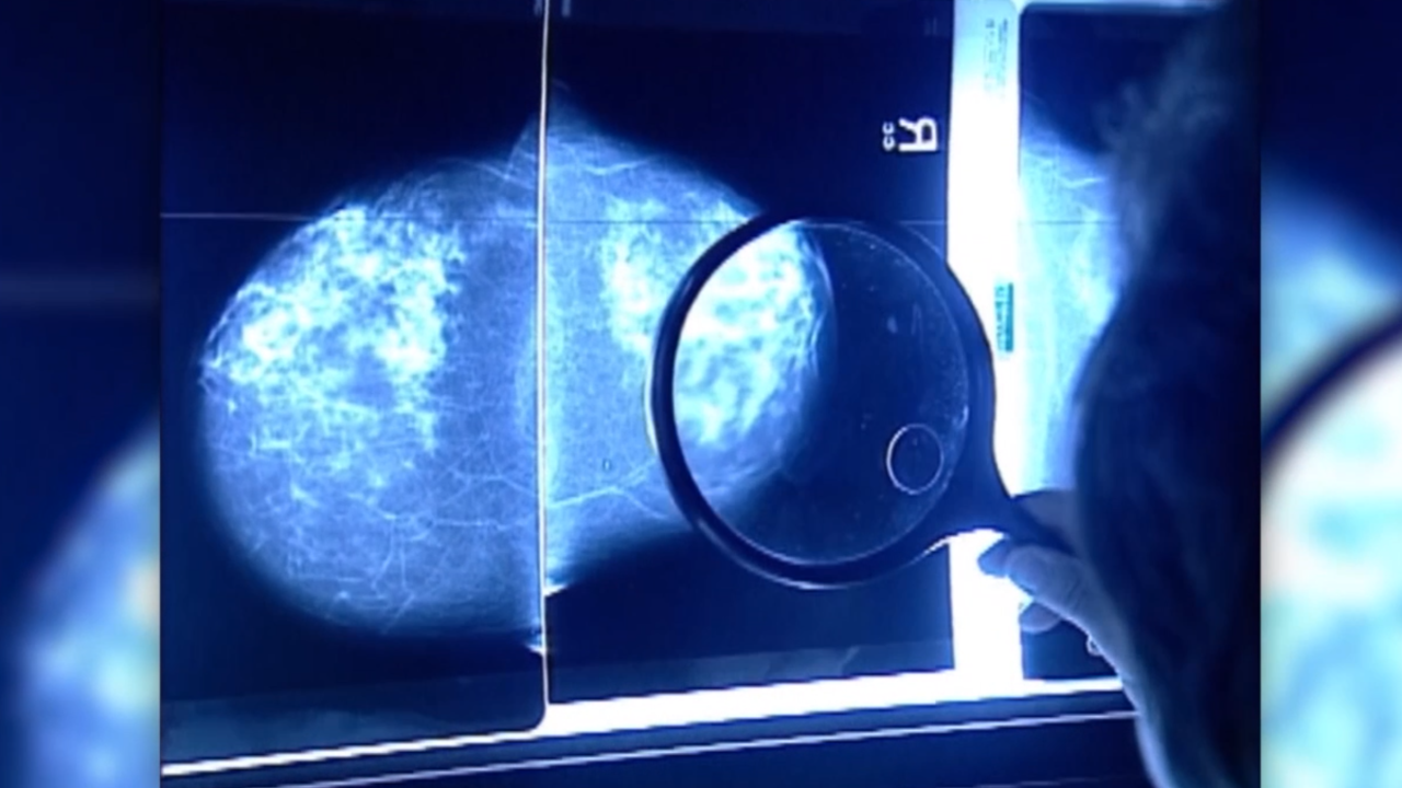 How often should women get a mammogram? New guidelines released