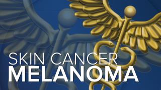 Melanoma-Skin-Cancer.png