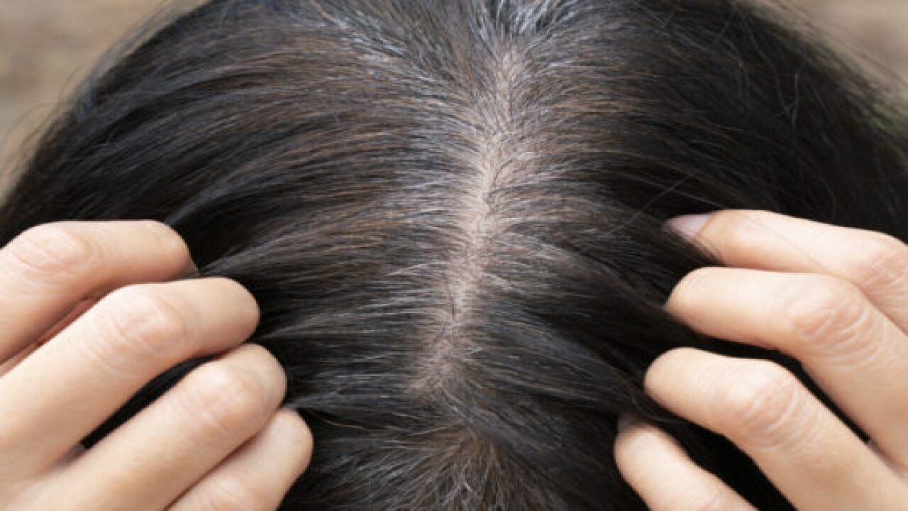 Scientists Have Found A Link Between Stress And Gray Hair