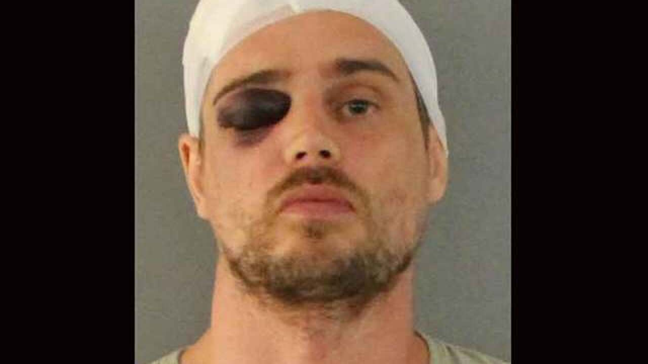 Florida burglar beaten by woman with bat