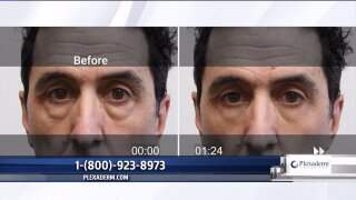 Say goodbye to pesky wrinkles with Plexaderm
