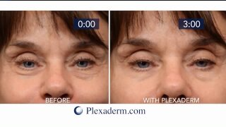 Say goodbye to unwanted age lines withPlexaderm