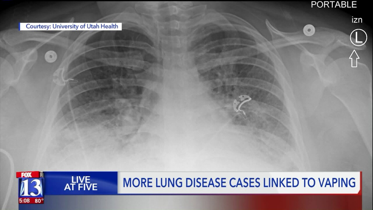 U of U doctor: Until lung issues' cause is determined, don't vapeanything