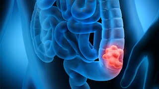 March 5 is National Dress in Blue Day for colorectal cancer awareness.