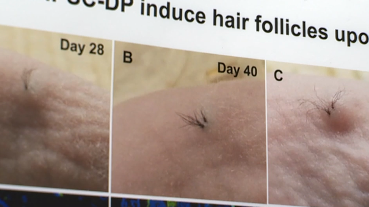 Stemson hair growth.png