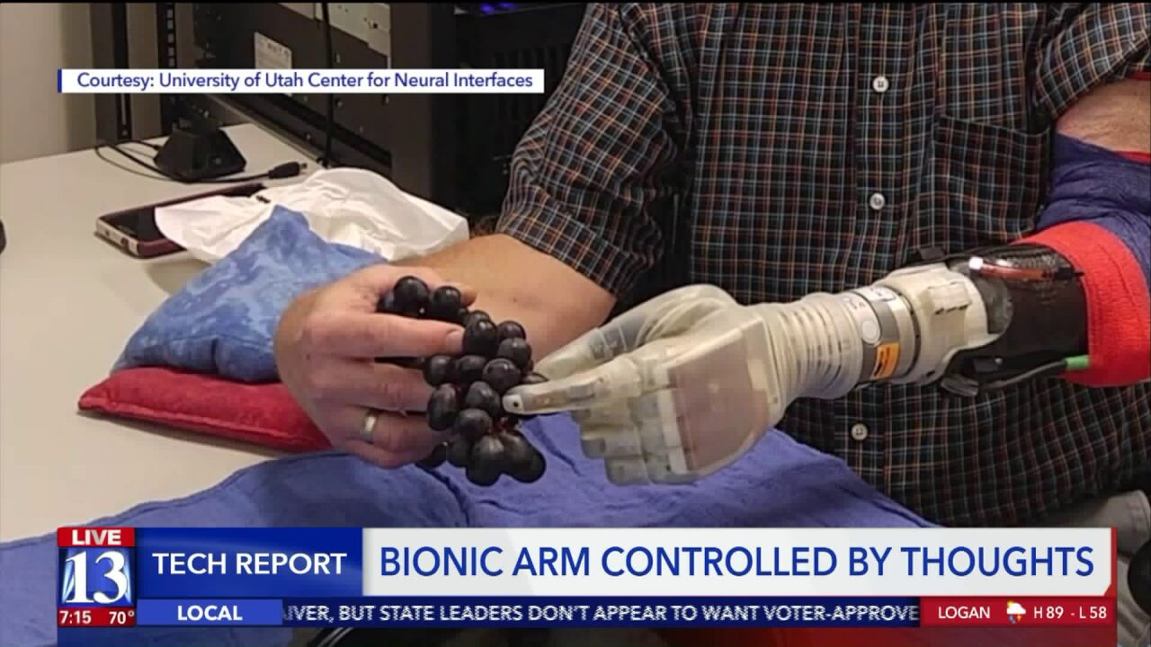 Bionic arm lets Utah man control it with just his thoughts