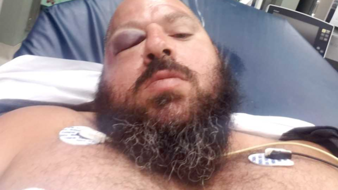 Motorcyclist sees surveillance video of hit-and-run crash: 'He just ran off and left me to die'