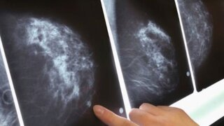 Women with common breast cancer may not need chemotherapy, study says