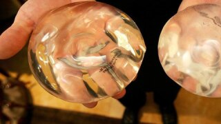 Michigan surgeons push for 'informed consent' before getting breast implants
