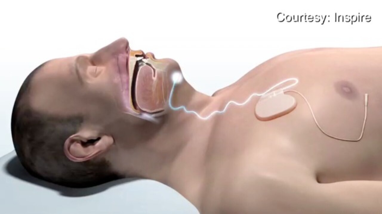 Colorado's first sleep apnea deviced implanted