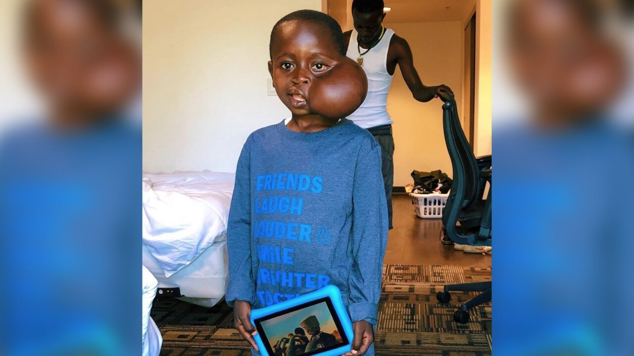 Boy who flew to US for tumor removal dies