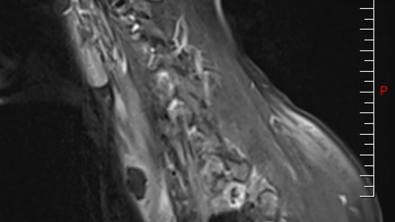 Hargrave MRI.jpg