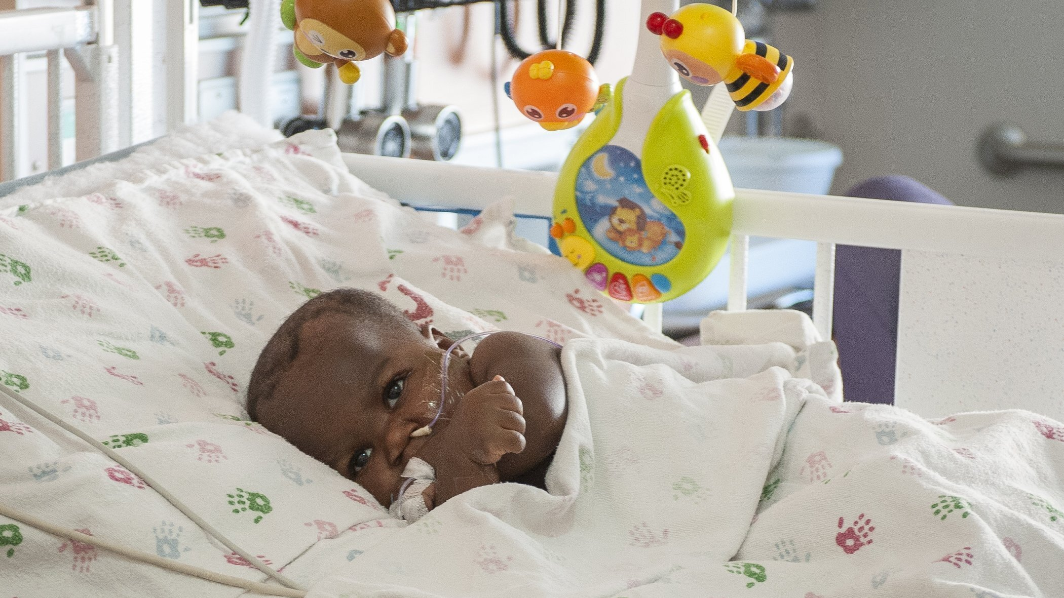 Photos: Risky surgery separates 10-month-old from parasitictwin