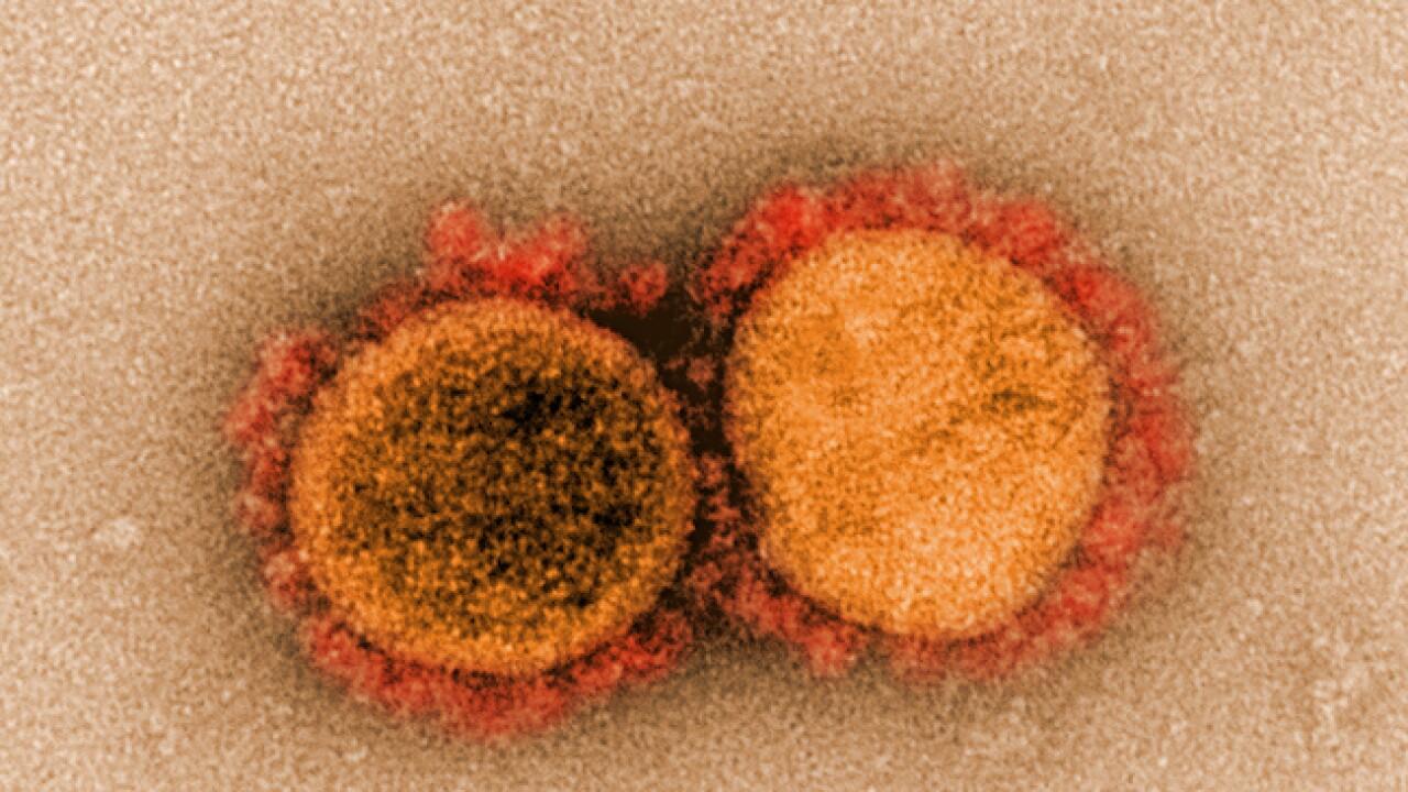 Coronavirus particles