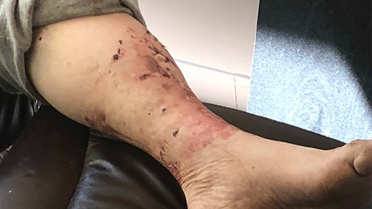 Ohio man mistakenly attacked by police K-9